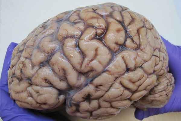 Nieuw onderzoek: lichaamsbeweging vertraagt Alzheimer