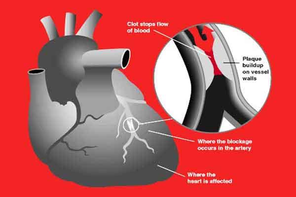 Hoe voorkom je een hartaanval? (10 tips)