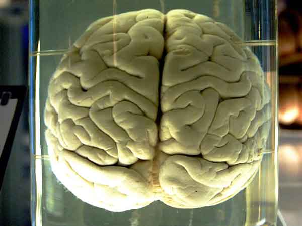 Wat is van invloed op je geheugen en je brein? Deze 12 bijzondere zaken!