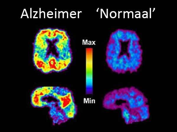 27 stressvolle ervaringen die zorgen voor versnelde dementie of Alzheimer, de volledige lijst