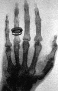 Afbeelding van de hand met ring van Albert von Kölliker door Wilhelm Röntgen. Een van de eerste röntgenfoto's, gemaakt op 23 januari 1896.