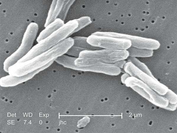 10 Dodelijkste bacteriën ter wereld